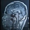 Forum Guzy czaszki i tkanek miękkich głowy