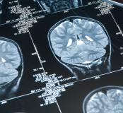 Badania neurologiczne