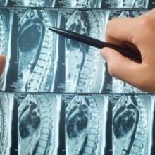 Choroby kręgosłupa