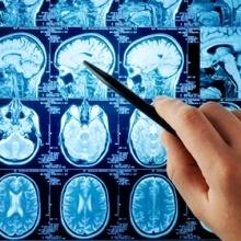 Neuroinfekcje, zapalenie opon mózgowo-rdzeniowych