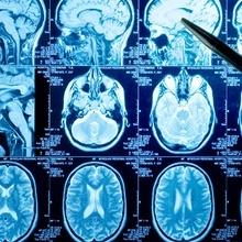 Wady wrodzone układu nerwowego