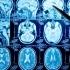 Pytania Wady wrodzone układu nerwowego